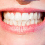 Why Taking Care of Cavities Early Is the Best Approach